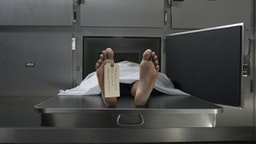 Cadaver on autopsy table, label tied to toe - stock photo