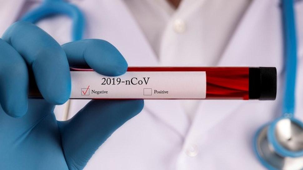 Coronavirus, Blood, Medical Test, Medical Research, Medical Sample