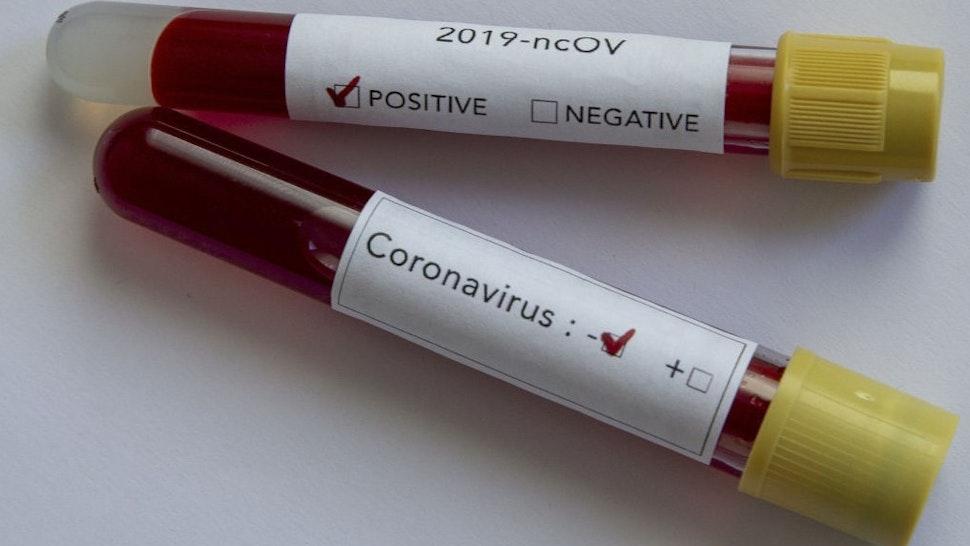 ANKARA, TURKEY - FEBRUARY 14: In this photo illustration coronavirus (2019-nCoV) positive and negative blood samples are displayed on February 14, 2020 in Ankara, Turkey.