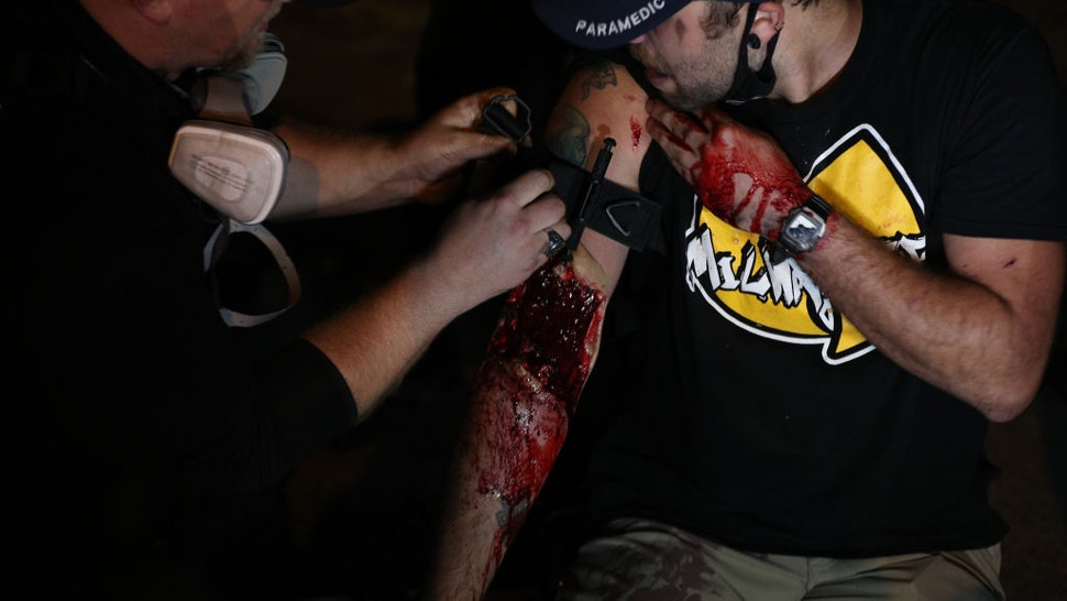 A man was shot in the arm as clashes between protesters and armed civilians who protect the streets of Kenosha against the arson during the third day of protests over the shooting of a black man Jacob Blake by police officer in Wisconsin, United States on August 25, 2020.