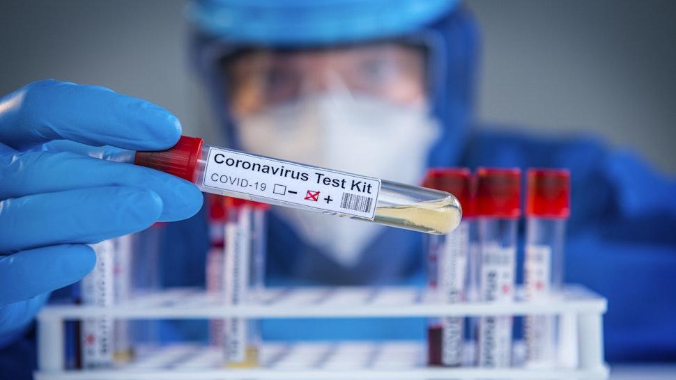 Examining coronavirus COVID 19 medical samples on kits novel corona virus outbreak - stock photo