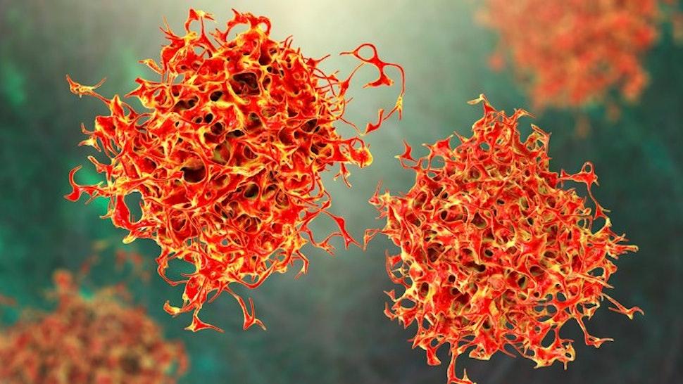 Cancer cells, illustration