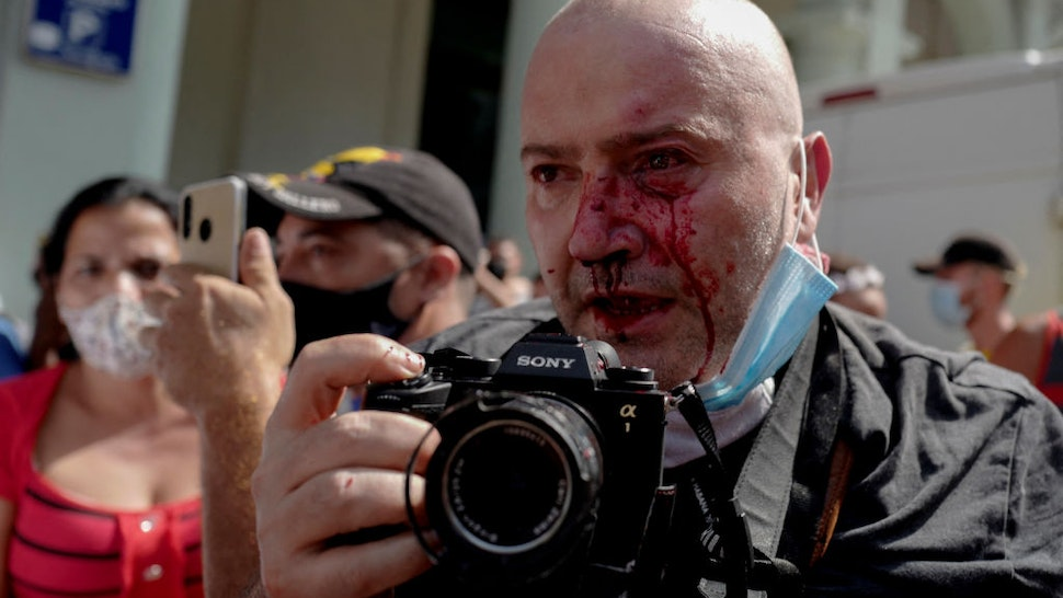 AP photographer, Spanish Ramon Espinosa, is seen with injuries in his face while covering a demonstration against Cuban President Miguel Diaz-Canel in Havana, on July 11, 2021