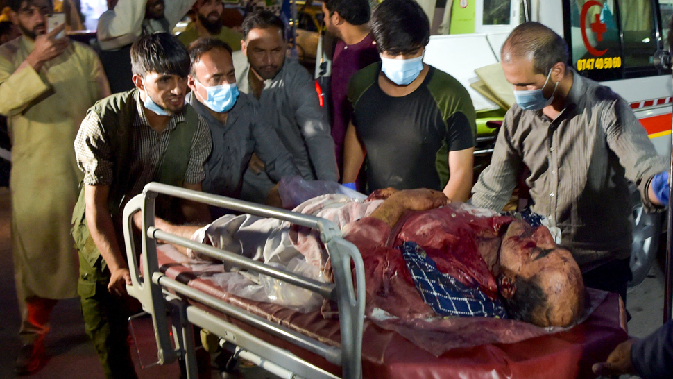 Graphic content / Volunteers and medical staff bring an injured man for treatment after two powerful explosions, which killed at least six people, outside the airport in Kabul on August 26, 2021.