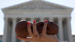 WASHINGTON, DC - JUNE 29: A pro-life activist holds a model fetus during a demonstration in front of the U.S. Supreme Court June 29, 2020 in Washington, DC. The Supreme Court has ruled today, in a 5-4 decision, a Louisiana law that required abortion doctors need admitting privileges to nearby hospitals unconstitutional. (Photo by Alex Wong/Getty Images)